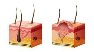 Cinsel Organda Siğil çıkması tedavisi   HPV   Human Papillomavirus   Remzi Erdem   Kadir Tepeler   Ürolife
