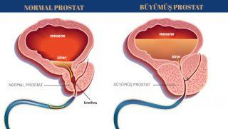 """""""Prostat Büyümesi Nedir? Prostat Neden Büyür? Prostat tedavisi, en iyi doktor, Kadir Tepeler, Ürolife"""""""