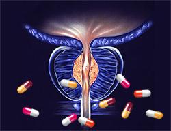 Holep | Böbrek | taş hastalıkları | taş düşürme | böbrek ağrısı | uzman doktor | Ürolife